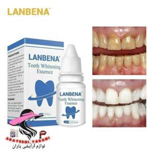سفیدکننده دندان